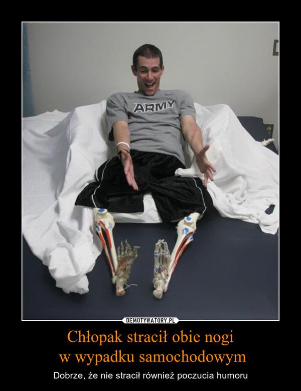 Chłopak stracił obie nogi w wypadku samochodowym – Dobrze, że nie stracił również poczucia humoru