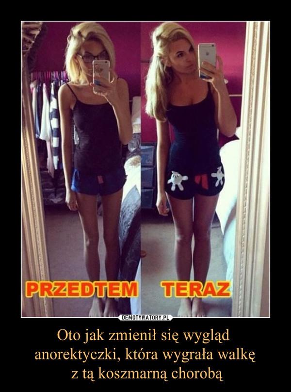Oto jak zmienił się wygląd anorektyczki, która wygrała walkę z tą koszmarną chorobą –