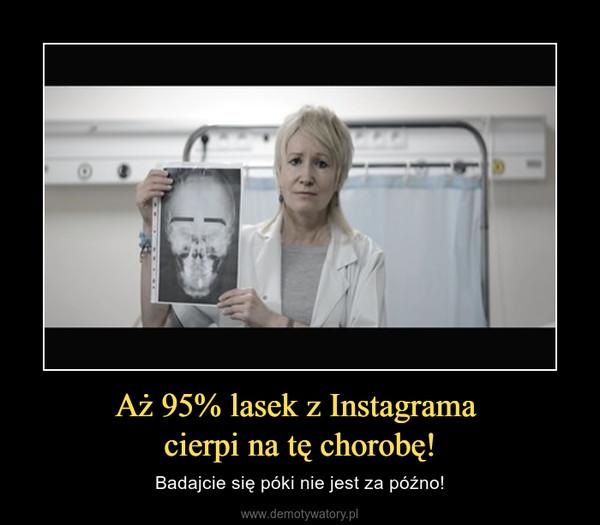 Aż 95% lasek z Instagrama cierpi na tę chorobę! – Badajcie się póki nie jest za późno!