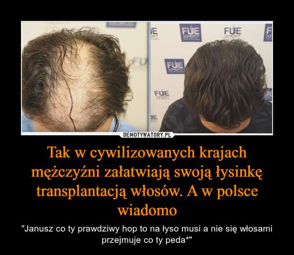 """Tak w cywilizowanych krajach mężczyźni załatwiają swoją łysinkę transplantacją włosów. A w polsce wiadomo – """"Janusz co ty prawdziwy hop to na łyso musi a nie się włosami przejmuje co ty peda*"""""""