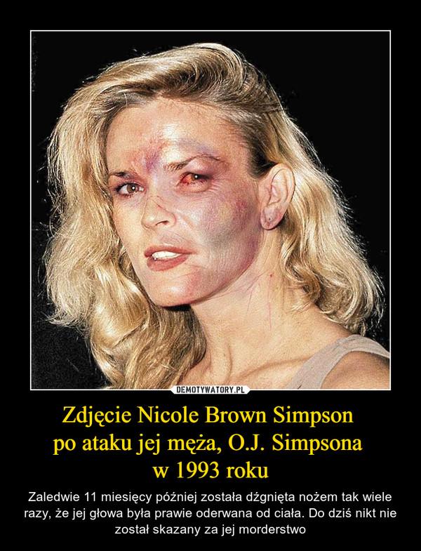 Zdjęcie Nicole Brown Simpson po ataku jej męża, O.J. Simpsona w 1993 roku – Zaledwie 11 miesięcy później została dźgnięta nożem tak wiele razy, że jej głowa była prawie oderwana od ciała. Do dziś nikt nie został skazany za jej morderstwo