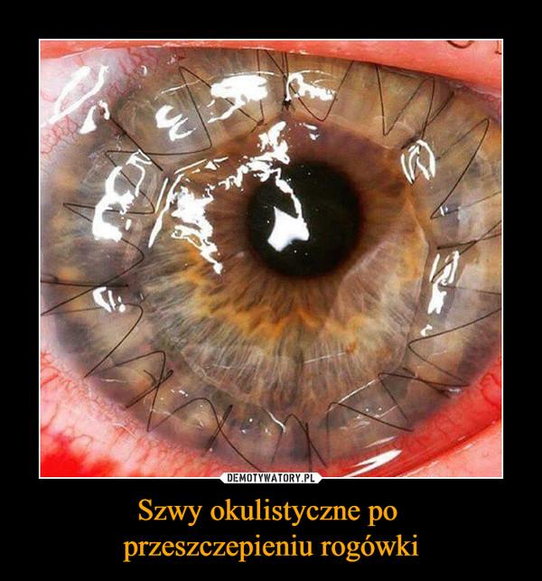 Szwy okulistyczne po przeszczepieniu rogówki –