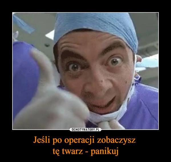 Jeśli po operacji zobaczysz tę twarz - panikuj –