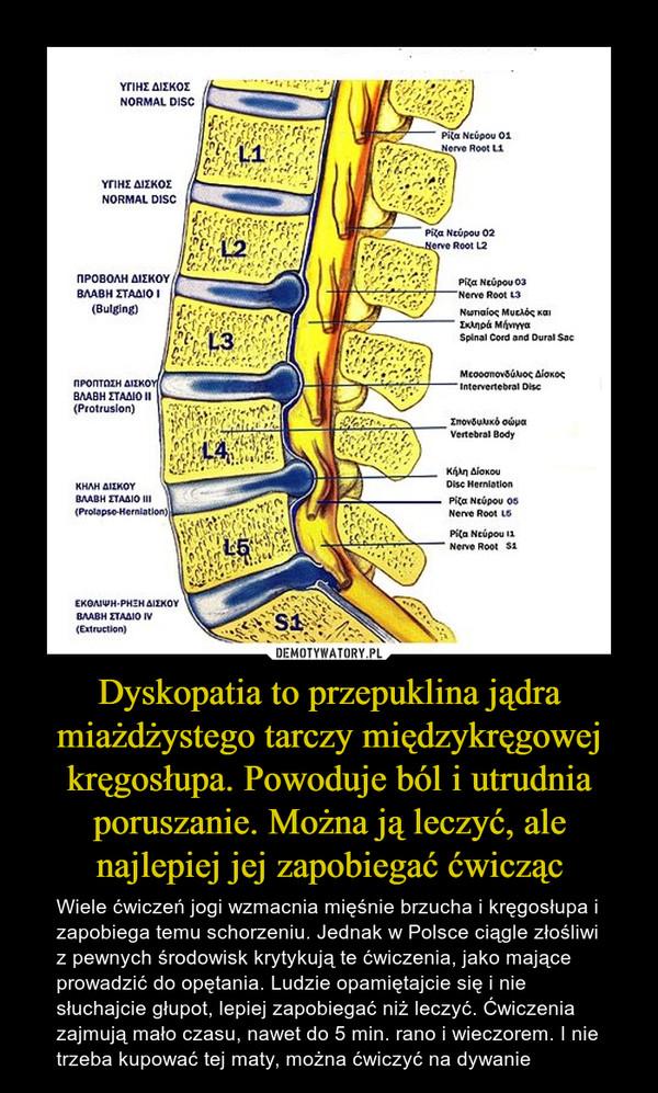 Dyskopatia to przepuklina jądra miażdżystego tarczy międzykręgowej kręgosłupa. Powoduje ból i utrudnia poruszanie. Można ją leczyć, ale najlepiej jej zapobiegać ćwicząc – Wiele ćwiczeń jogi wzmacnia mięśnie brzucha i kręgosłupa i zapobiega temu schorzeniu. Jednak w Polsce ciągle złośliwi z pewnych środowisk krytykują te ćwiczenia, jako mające prowadzić do opętania. Ludzie opamiętajcie się i nie słuchajcie głupot, lepiej zapobiegać niż leczyć. Ćwiczenia zajmują mało czasu, nawet do 5 min. rano i wieczorem. I nie trzeba kupować tej maty, można ćwiczyć na dywanie