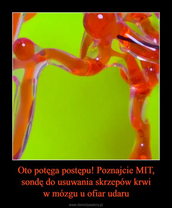 Oto potęga postępu! Poznajcie MIT,sondę do usuwania skrzepów krwiw mózgu u ofiar udaru –